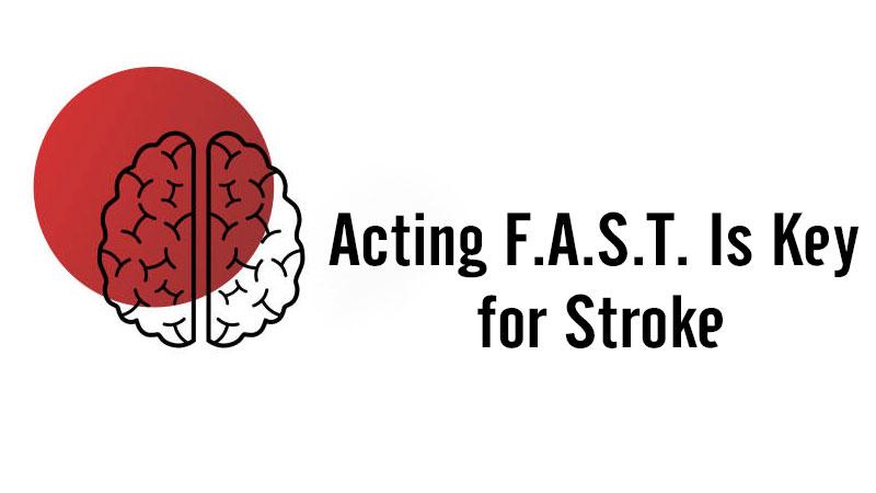 Quy tắc F.A.S.T giúp phát hiện đột quỵ não